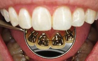 Brackets Linguales - HC Odontologos - Clinica Dental Merida
