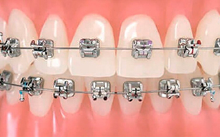 Brackets de Autoligado - HC Odontologos - Clinica Dental Merida