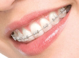 Brackets de porcelana - hcodontologos - clinica dental merida