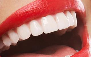Carillas - HC Odontologos - Clinica Dental Merida