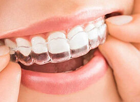 Invisalign - HC Odontologos - clinica dental en merida